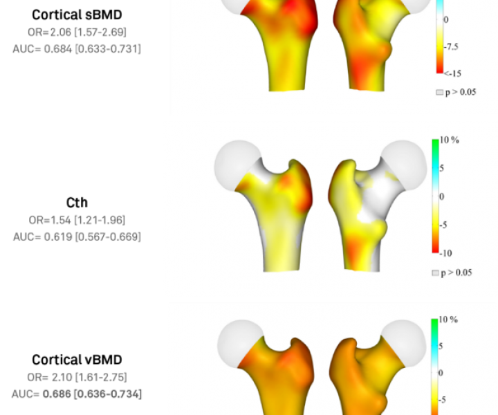 Secondary Osteoporosis
