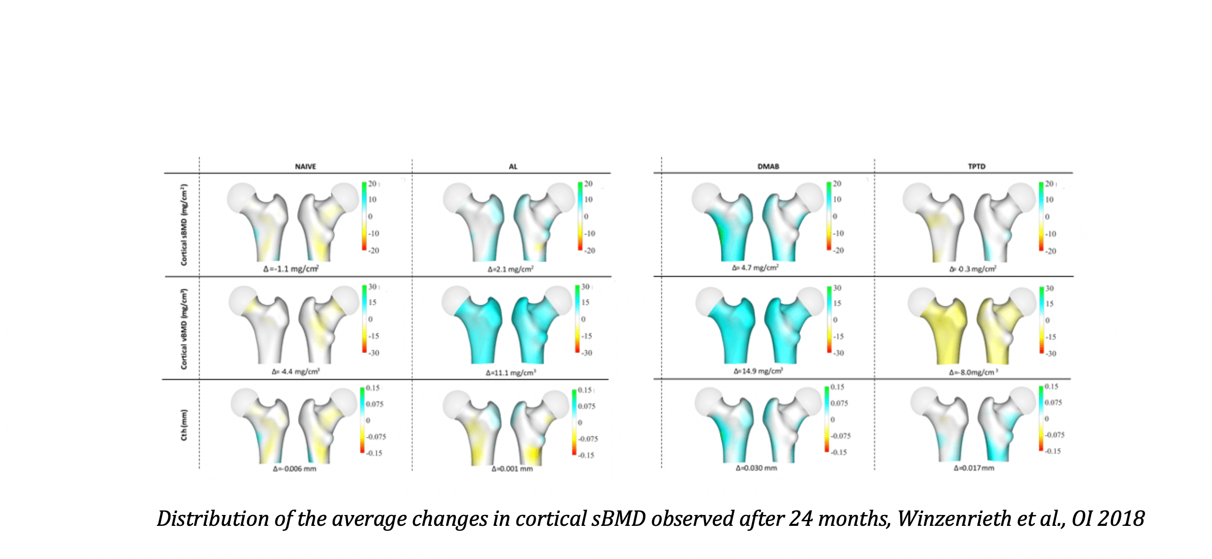 Distribution of the average changes in cortical bone observed after 24 months, Winzenrieth et al., OI 2018
